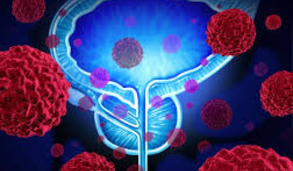 Chinese biotech aims $232M in IPO cash to push next-gen prostate cancer drug; Immunomedics raises nearly a half-billion off approval